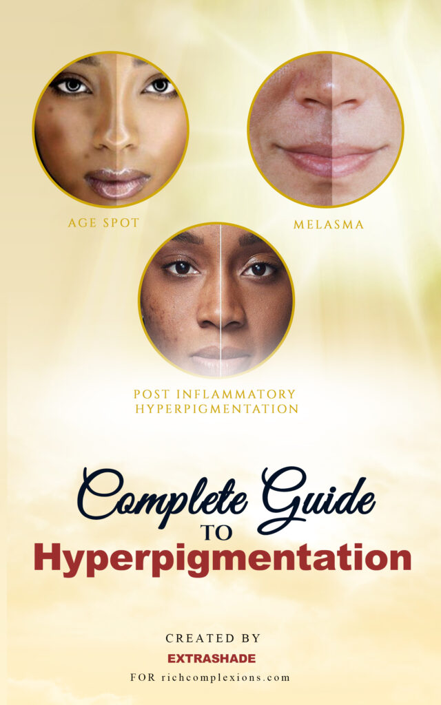 Complete guide to hyperpigmentation pdf download